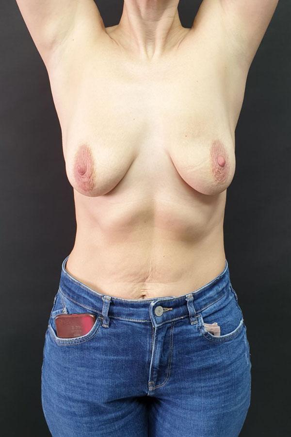 підтяжка грудей тернопіль