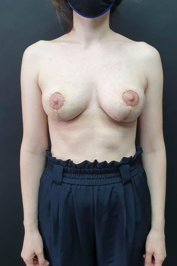 зменшення грудей фото