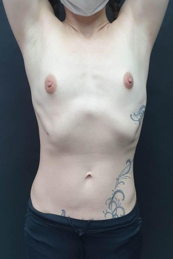 збільшуюча мамопластика хмельницький