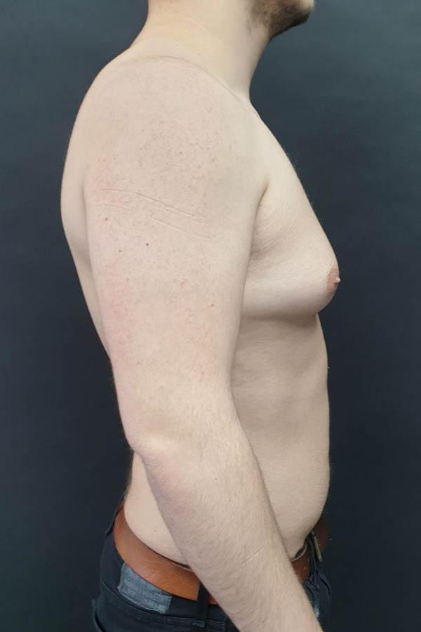 лікування гінекомастії фото