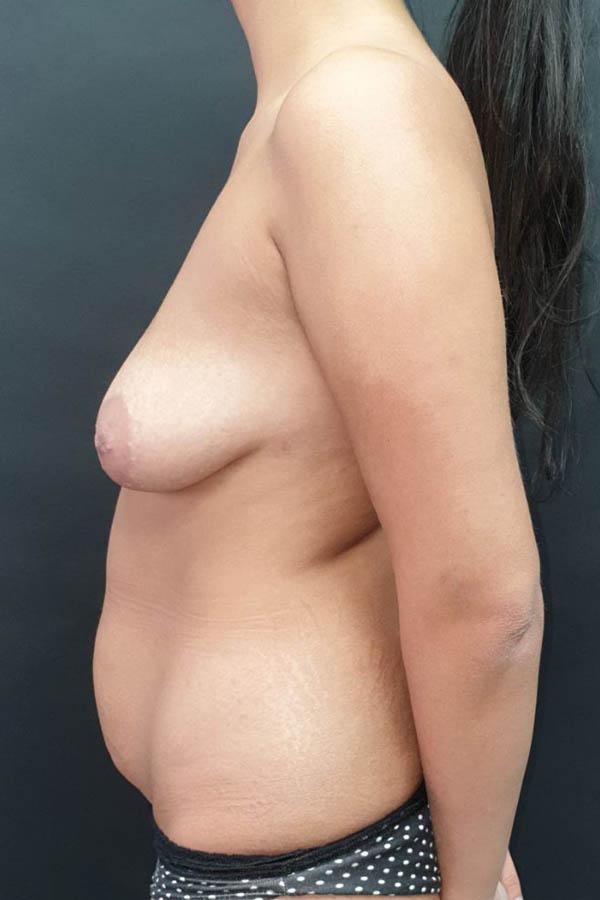 фото підтяжка грудей