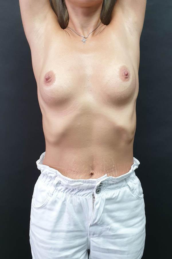 збільшеннягрудей імплантами