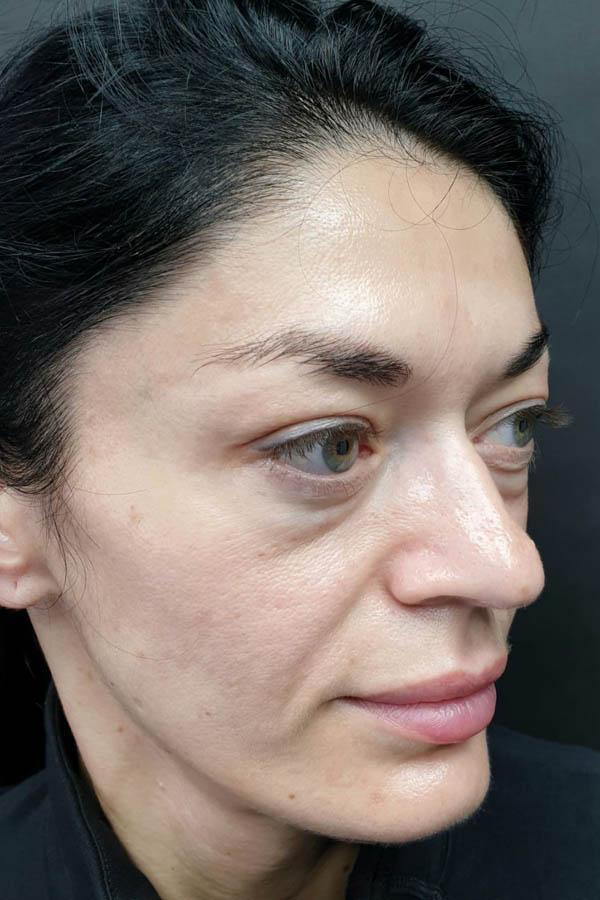 підтяжка повік з ліпофілінгом