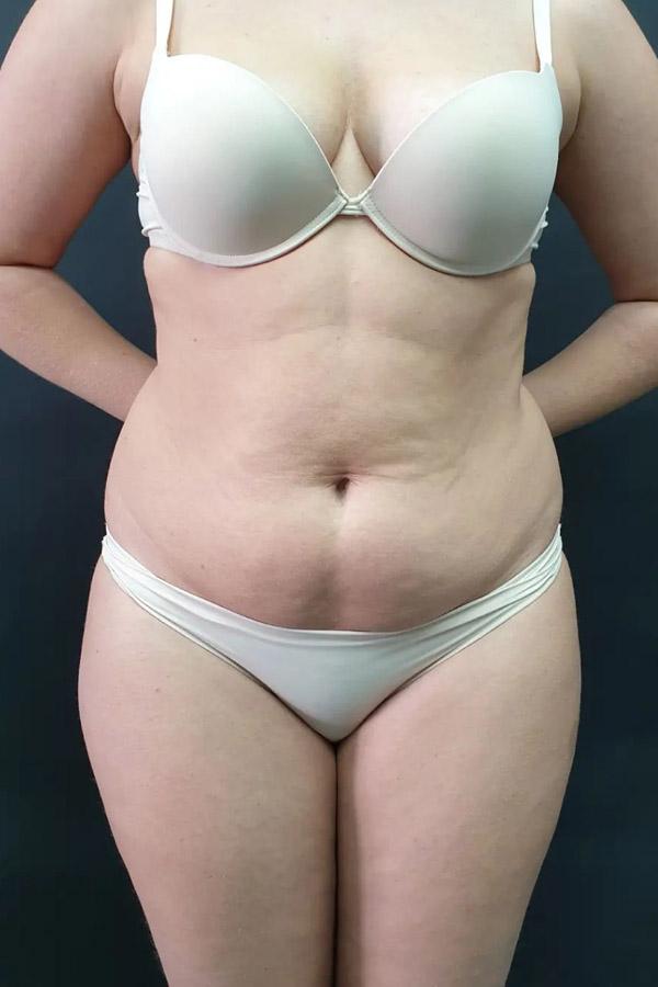 видалення жиру тернопіль