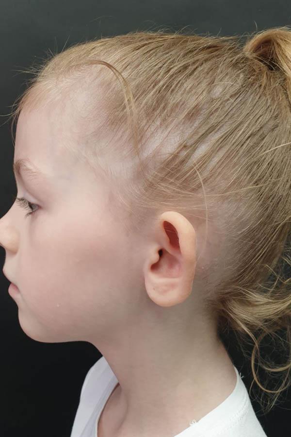 корекція клаповухості у дітей